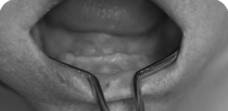The dental rehabilitation of the 65-year-old female patient's total lower toothlessness using the NobelGuide process.