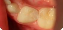 Aesthetic filling of decayed milk tooth