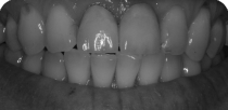 Teeth whitening and metal-free crowns