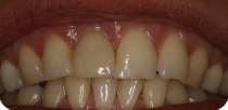 Front teeth prosthesis without grinding, with NobelReplace implants and zirconium crowns.