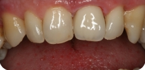 The middle-aged male patient's left upper central incisor was covered with metal-free zirconia crown after individual colour and shape determination.