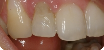 Immediate dentures after tooth removal
