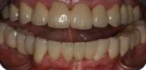 Upper and lower overall aesthetic rehabilitation with Procera zirconia crowns.