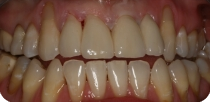 Why do we recommend the metal-free (zirconia) crowns? (Case 1)