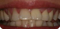 Why do we recommend the metal-free (zirconia) crowns? (Case 2)