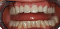 Very cute middle-aged female patient's missing tooth was replaced, and her unaesthetic dental status was sorted out with metal-free zirconium crowns / bridges.
