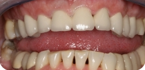 Replacing the traditional metal and ceramic dentures and teeth whitening