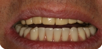 Cost-effective tooth implantation when little lateral jaw-bone is available