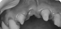Replacing the missing front tooth with a three-member zircon bridge.