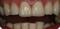 The top two injured central incisors of the young male patient, living in the U.S., were corrected with metal-free zirconium dioxide aesthetic crowns.