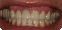 Rehabilitation of our young female patient's unaesthetic front teeth using metal free zirconia crowns.
