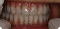 Solving the complete upper and lower toothlessness if little bone substance is suitable for implantation.