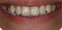Our young and pretty female patient's disadvantageously coloured and unaesthetic front teeth were covered with metal-free zirconium dioxide crowns.