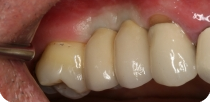 Replacement of the right upper premolars with Nobel Active implants.
